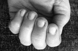 Munched fingernails.